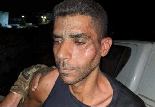 الاحتلال انهال بالضرب على الزبيدي بعد مقاومته لهم